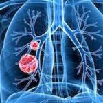 肺癌患者的肺康复训练