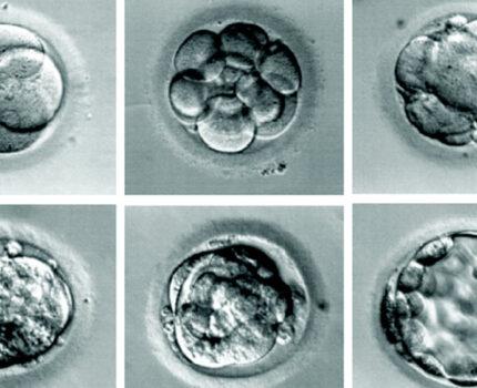 """带您走进""""试管婴儿""""的摇篮——胚胎实验室"""