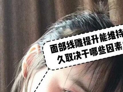 面部线雕提升可以保持多久?