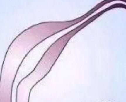宫腔镜手术在生殖方面的优势(一)