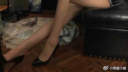 坐标上海 在北京做了神经阻断术瘦小腿肌肉和大小腿吸脂 案例分享