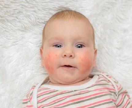 宝宝湿疹反反复复怎么办?搞清这三点就可以有效应对