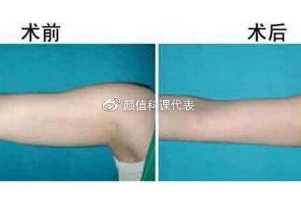 成都手臂吸脂   做手臂吸脂没细而且恢复期好痛苦,问题出在哪?