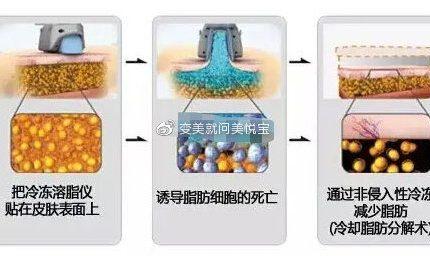 冷冻溶脂和吸脂有什么区别?效果明显吗?冷冻溶脂是怎么做的?