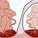 双胞胎输血综合征+29周早产,我经历了什么