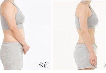 腰腹和大腿可以同时进行吸脂吗?