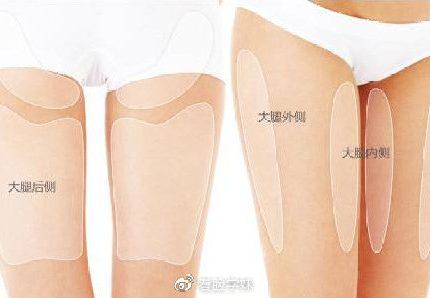 大腿吸脂后塑身衣要穿多久?