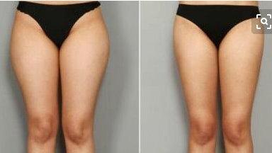 大腿吸脂后凹凸不平应该如何改善?吸脂术后护理指南