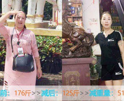 【每周案例】保迪秀美体塑身衡水安平店-张女士减重51斤