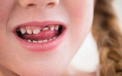 反正是要换牙的,就不用刷牙了吧?你家宝宝牙齿遇到问题了吗?