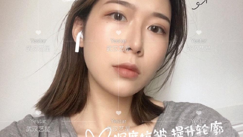 热玛吉面颈部治疗头可以作用于眼周吗?