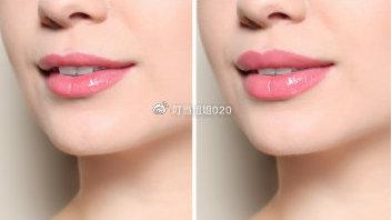 唇裂修复术效果怎么样?前后对比图你就知道了