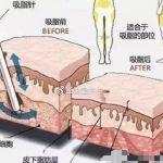 用吸脂真实案例揭秘共振吸脂、激光溶脂和水动力吸脂的区别