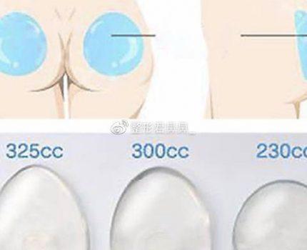 想知道做臀部抽脂分哪几个部位?
