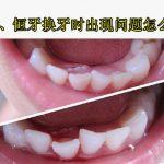 乳牙没掉恒牙长出来影响换牙吗?儿童牙齿问题爸妈别忽视!