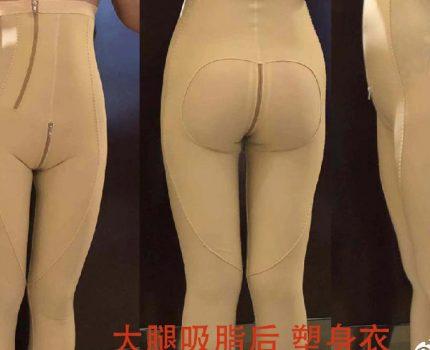 大腿吸脂术后应该注意什么?束身衣需要穿多久?