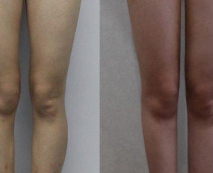 快速改善腿型,适合懒人的改善腿型法