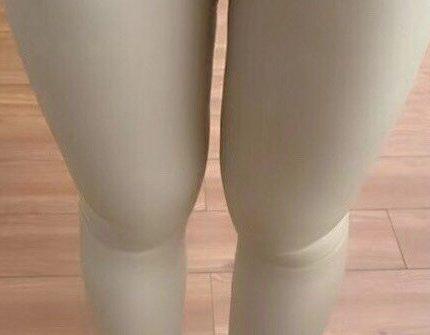 吸脂瘦大腿术后7天感受分享