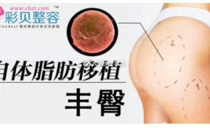 填充凹陷,自体脂肪丰臀让体型凹凸有致