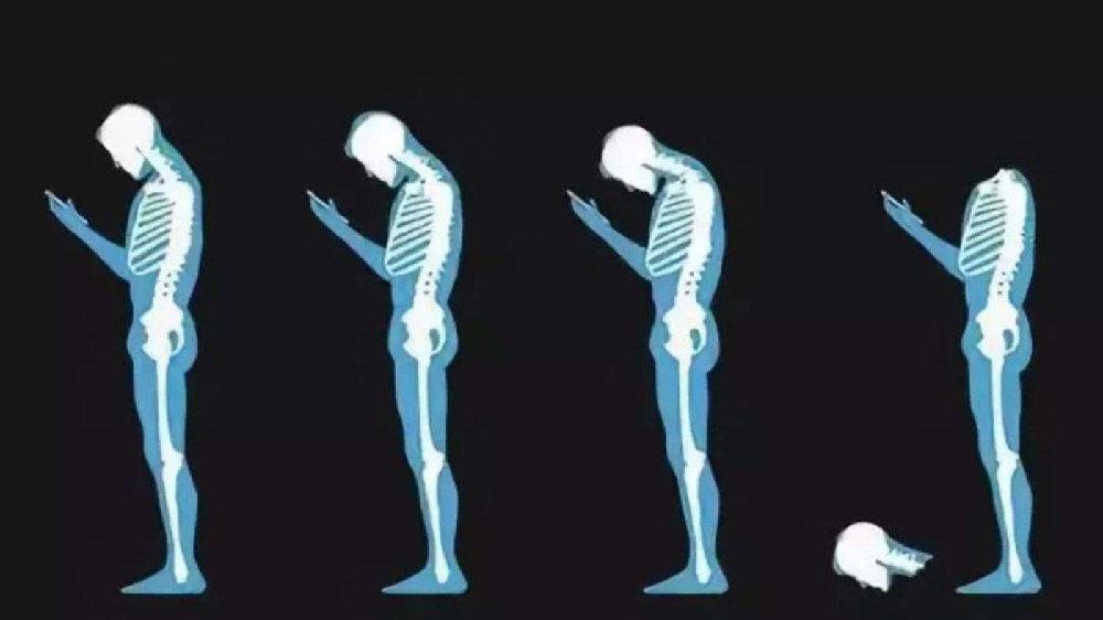 经常感觉脖子酸痛? 日常要做好颈椎病的护理