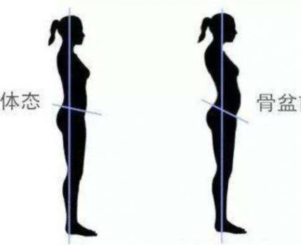 一个动作改善久坐导致的腰酸背痛和臀部扁塌