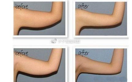 怎么瘦手臂效果最快?手臂吸脂效果如何?