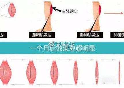 瘦腿针打完多久有效呢?