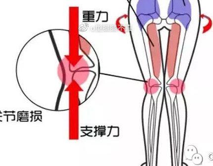 小腿粗跟O型腿有关系吗