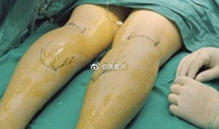小腿神经阻断术瘦小腿解决硬邦邦肌肉腿有后遗症和危害吗?