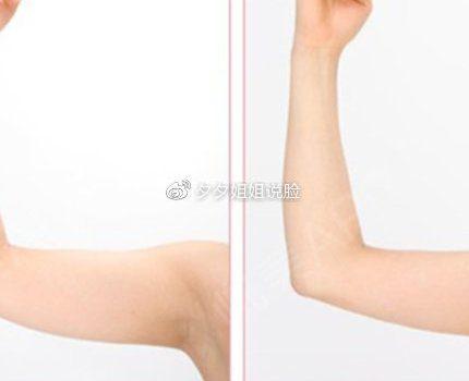 手臂,大小腿吸脂会留下那些后遗症?