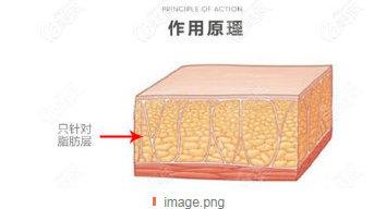 btl隔空溶脂和酷塑冷冻溶脂哪个瘦腰腹效果更好?