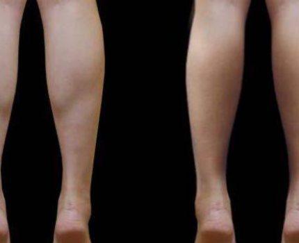 小腿肚比大腿还粗怎么办?打瘦腿针还是吸脂?