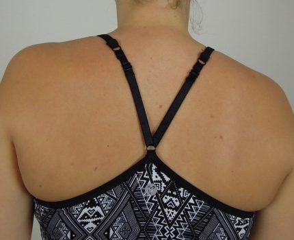 【译文分享】通过呼吸训练调整胸廓位置,让肩胛骨恢复中立位