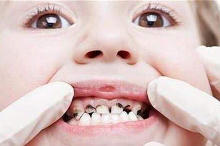 唯爱儿童电动牙刷|帮孩子刷个牙怎么就这么难