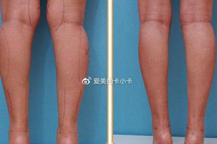 做完小腿吸脂术后应该注意哪些问题?